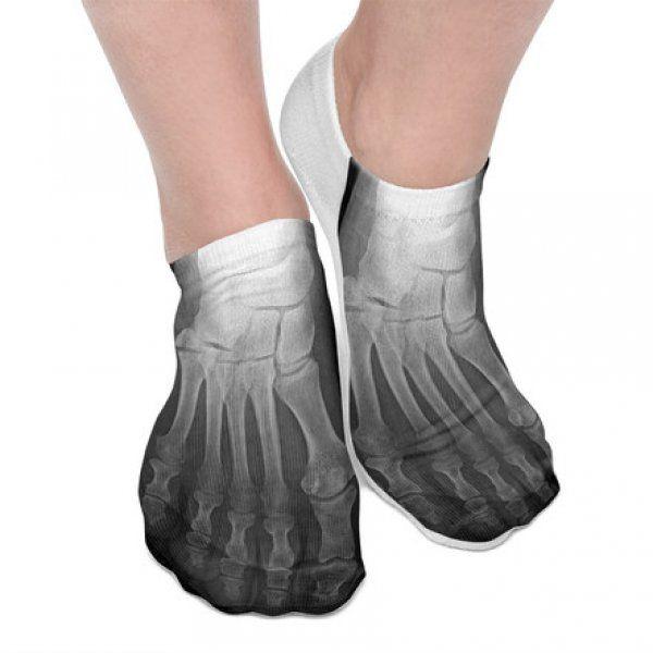 Rentgenové ponožky
